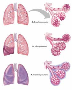 Causes of Pneumonia infection
