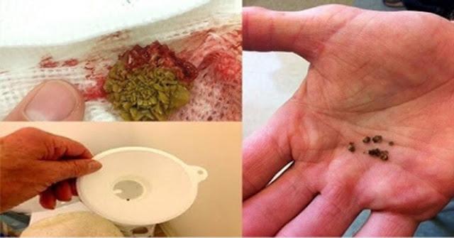 Resultado de imagen para POR QUE NO LO SUPE ANTES !! Sencillo Remedio Casero Para Eliminar en 8 Días las Piedras en los Riñones