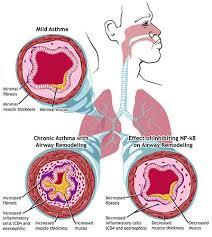 دمہ کے Step مرحلہ وار نیا نقشہ..Step by step new map of asthma