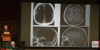Digital Dementia screenshot