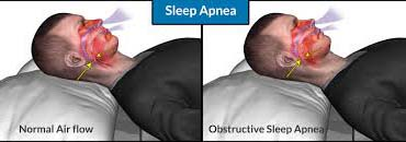 The Taiwanese research scientists observed 34100 people for eleven years, among which 6816 were sleep apnea patients, while others were not to find out the connection between sleep apnea and pneumonia.