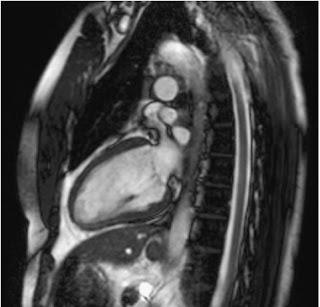 Heart MRI - RadTechOnDuty