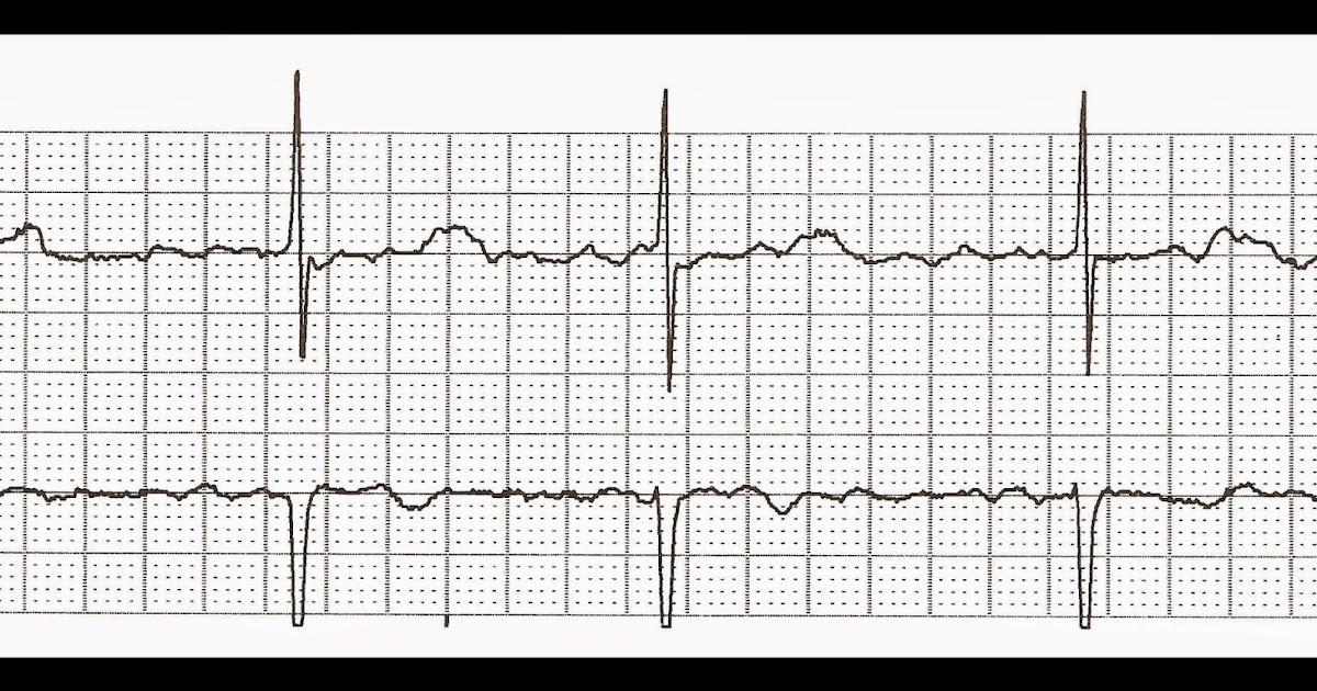 Float Nurse: Practice EKG Strips 373
