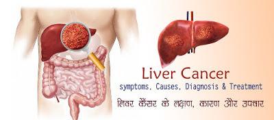 लिवर कैंसर लक्षण उपचार , Liver Cancer Symptoms in Hindi , लिवर कैंसर के लक्षण, Liver Cancer Early Signs & Symptoms, liver cancer ke lakshan, लिवर कैंसर की जांच / Liver Check up , Liver Cancer Checkup, liver cancer ki janch,