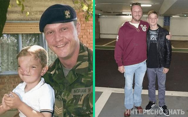 Мужчина собрал деньги и оплатил лечение мальчика с особенностью — судьба парня спустя 16 лет