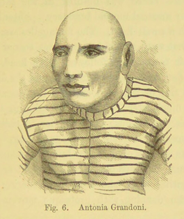 A pencil portrait of Antonia Grandoni taken from Dr Ireland's book. She is in three-quarter profile, her head is bald, and she is wearing a black and white stripy shirt like a prison uniform.