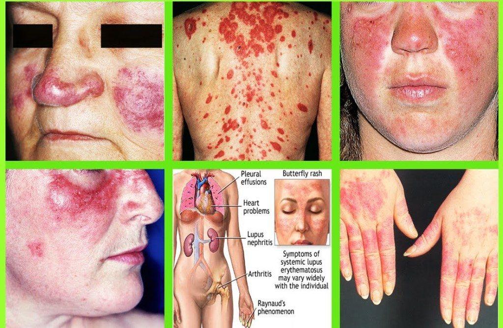 Paket Terapi untuk Lupus