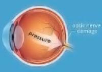 open-angle glaucoma.