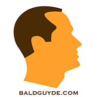 Male Pattern Baldness Stage 2 Hair Loss