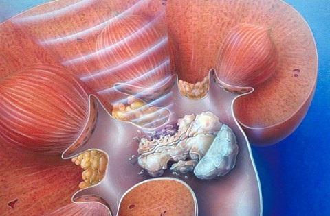 ginjal batu ginjal kesehatan kolesterol fungsi ginjal asam urat jantung gejala asam urat hipertensi obat sakit ginjal asam urat tinggi anatomi ginjal gejala gejala sakit ginjal gambar ginjal penyakit gagal ginjal bagian ginjal penyebab sakit ginjal bagian bagian ginjal sakit ginjal penyebab batu ginjal bagian ginjal dan fungsinya gagal ginjal fungsi glomerulus kanker ciri ciri penyakit ginjal asam urat dan kolesterol tanda tanda penyakit ginjal ciri penyakit ginjal penyakit pada ginjal batu ginjal adalah ciri ciri batu ginjal ginjal dan fungsinya penyebab penyakit ginjal penyebab gagal ginjal gejala penyakit ginjal ciri ciri gagal ginjal gejala batu ginjal ciri ciri sakit ginjal ciri sakit ginjal gejala gagal ginjal tanda tanda sakit ginjal pengertian ginjal gejala ginjal gagal ginjal akut obat ginjal tradisional obat batu ginjal alami obat penyakit ginjal obat tradisional batu ginjal obat herbal ginjal obat herbal batu ginjal penyakit batu ginjal ginjal manusia obat penghancur batu ginjal gagal ginjal kronik obat gagal ginjal obat batu ginjal penyakit ginjal obat ginjal fungsi fungsi ginjal gagal ginjal adalah ginjal sakit gejala ginjal pada wanita gejala penyakit ginjal awal penyebab penyakit batu ginjal ciri ciri penyakit gagal ginjal bagian dan fungsi ginjal gejala penyakit ginjal dan pengobatannya penyebab penyakit ginjal dan cara mengatasinya fungsi pelvis pada ginjal obat pembersih ginjal cara mengobati sakit ginjal korteks ginjal gambar bagian ginjal ciri ciri ginjal cara menyembuhkan penyakit ginjal fungsi arteri ginjal bagian bagian ginjal dan fungsinya gejala batu ginjal pada wanita obat batu ginjal ampuh gejala gejala penyakit ginjal fungsi ginjal pada manusia ukuran ginjal pengertian gagal ginjal gejala penyakit ginjal pada wanita obat herbal gagal ginjal tanpa cuci darah ciri ciri ginjal sehat penyakit ginjal dan penyebabnya obat sakit batu ginjal gejala gangguan ginjal gambar bagian bagian ginjal bagian ginjal yang berfungsi menyaring darah obat sakit