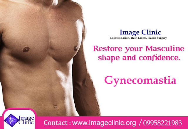 best gynecomastia surgery in delhi, best gynecomastia surgery in india, best gynecomastia surgery delhi, best gynecomastia surgeon india, specialist gynecomastia surgeon in delhi male breast reduction delhi, best gynecomastia india
