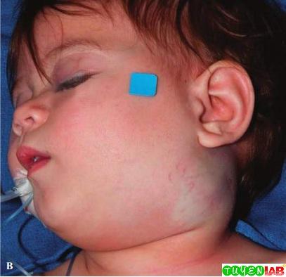 [Pediatric] Atlas of Child physical abuse   Free Medical Atlas