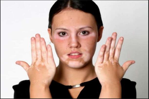 ماهو مرض البهاق الأسباب والاعراض وطرق علاجه