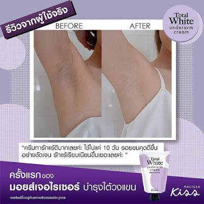 Total White Underarm Cream Pemutih Ketiak