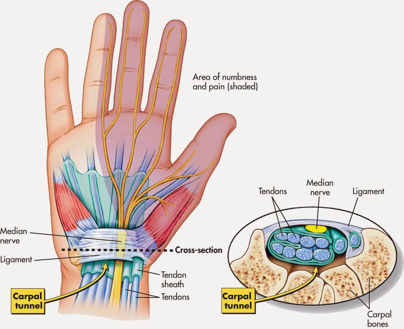 gambar cts, gambar carpal tunnel syndrome, anatomi cts
