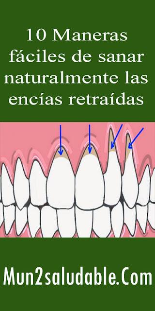 10-Maneras-fáciles-de-sanar-naturalmente-las-encías-retraídas