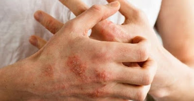 egzama-tedavi-hastalikbelirtileri.net