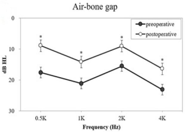 Костно-воздушный интервал в пред- и послеоперационном периодах