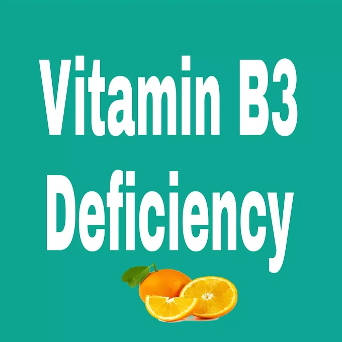 What is Vitamin B3