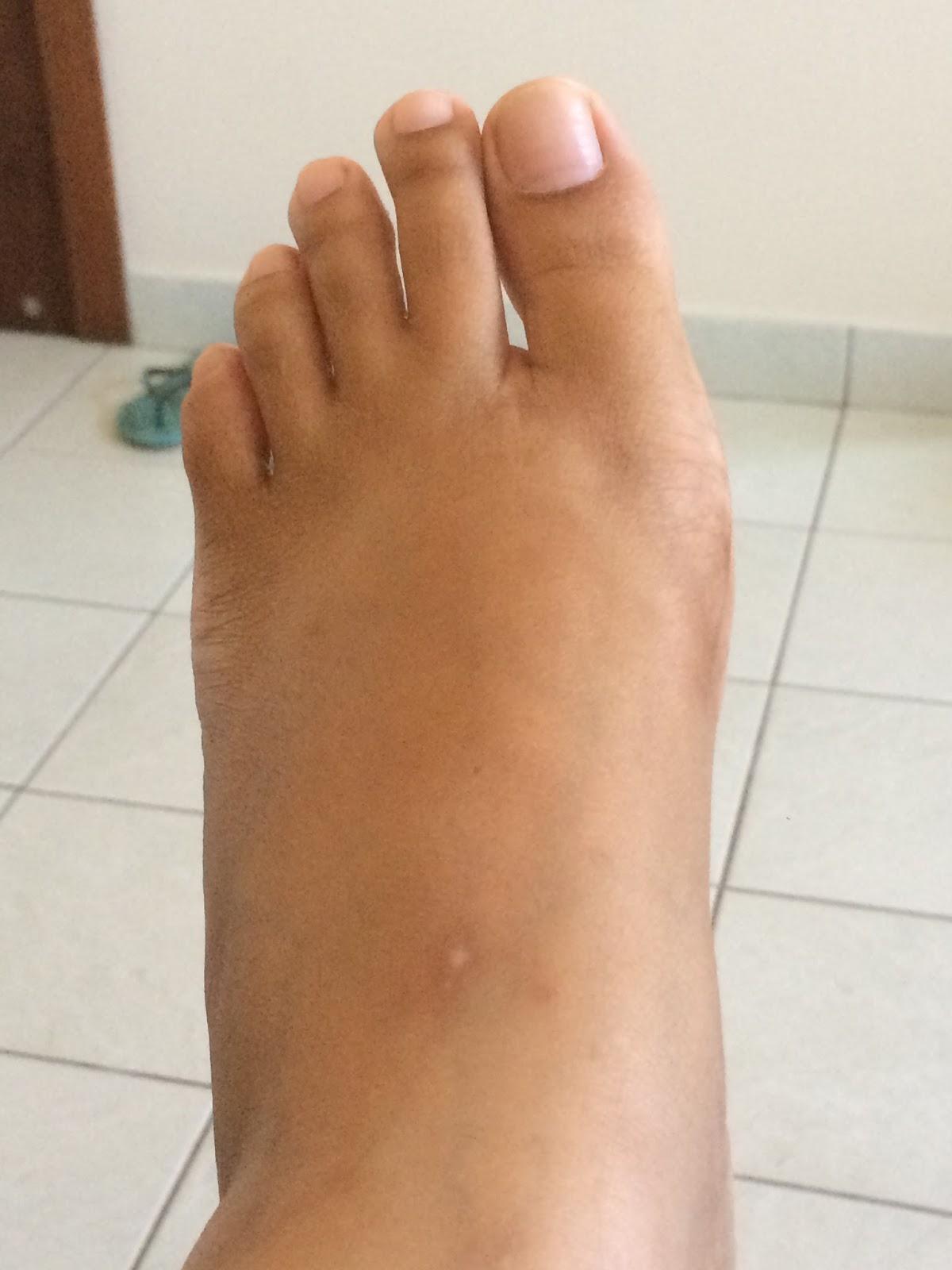 por que meu pé está inchado após a cirurgia