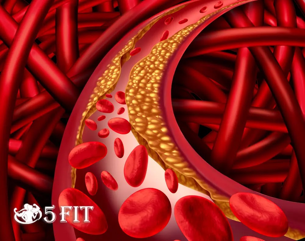 Everything You Need to Find Out About High Cholesterol
