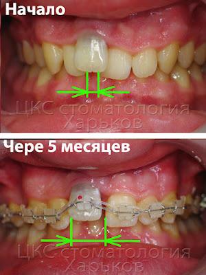 скрытые перемещения зубов