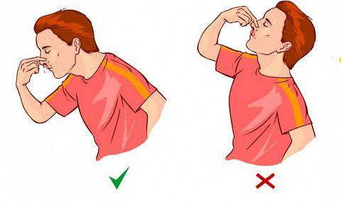 mengatasi perdarahan pada hidung
