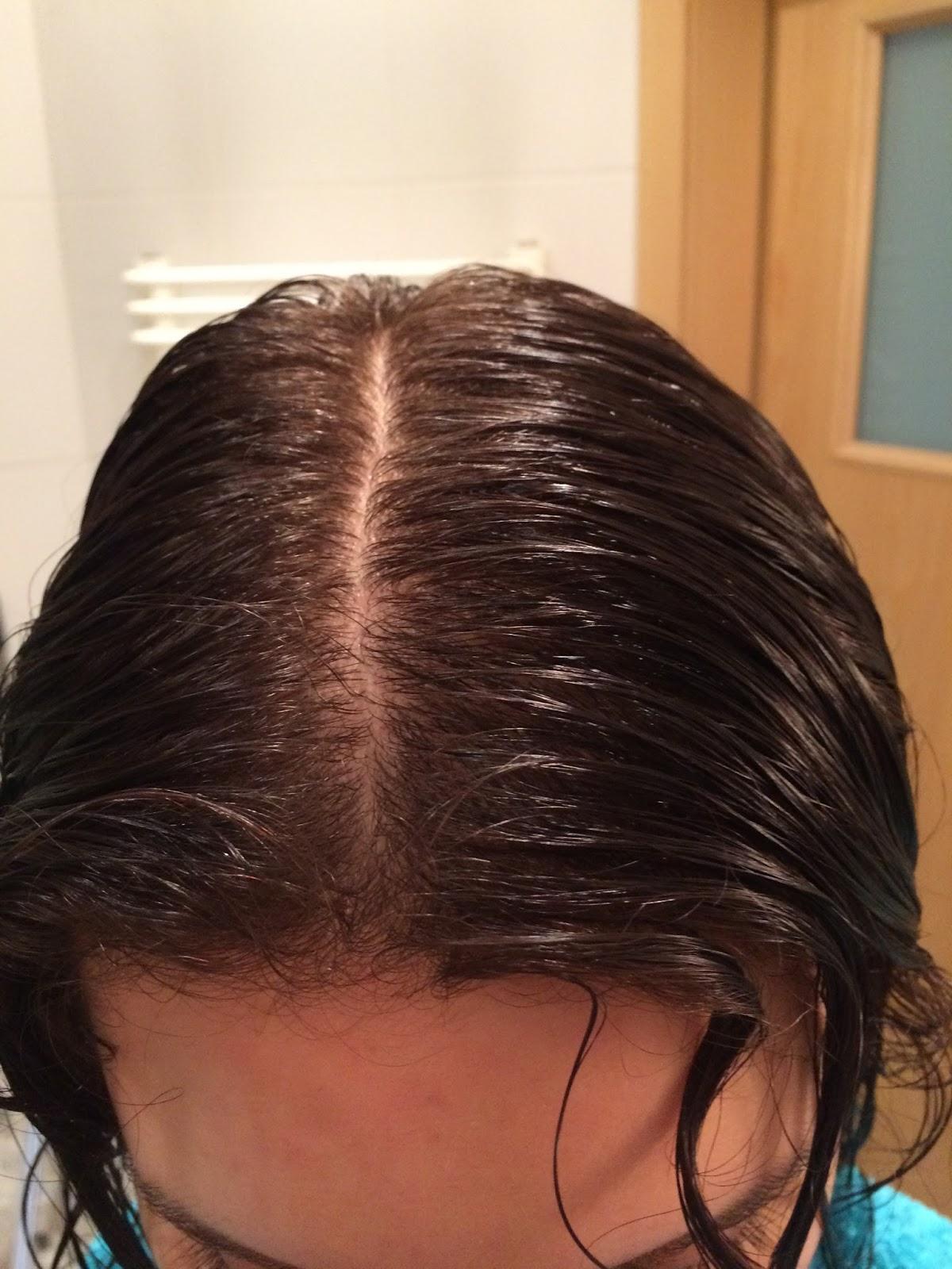 wypadanie włosów przy diecie