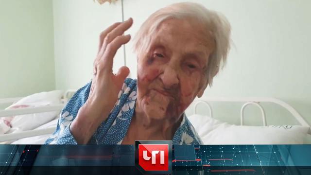 «Все лицо синее, сломан нос»: пьяная сиделка два часа избивала 98-летнюю бабушку-блокадницу