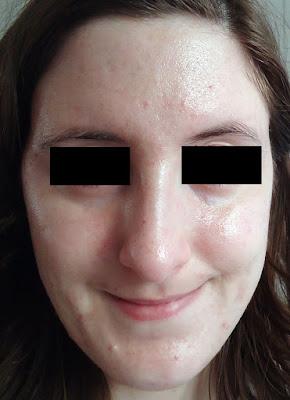 beautypul, adapalene, adapaleno, aging, anti age, envejecimiento, mi experiencia, retinal, retinol, retinyl palmitate, tretinoin, tretinoina, vitamina A,