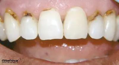 تسوس الأسنان الأعراض والمراحل وطرق العلاج.