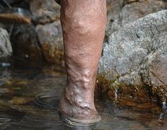 puncte cu vene varicoase pentru a efectua lipitori