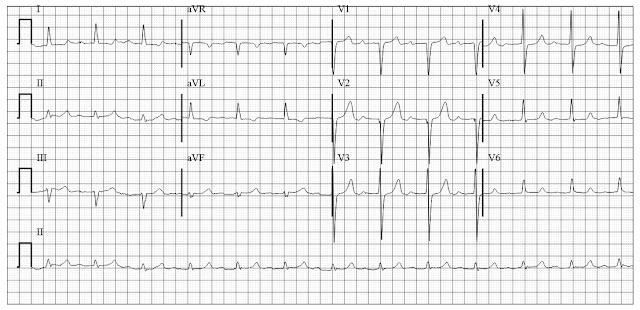 ECG of old anteroseptal MI IVCD with prolong QT