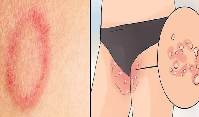 Do Not Make These 5 Mistakes During Ringworm and Itching