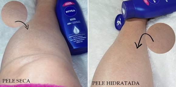 pele-hidratada-antes-e-depois