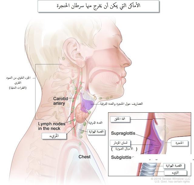 تشريح الحنجرة وأماكن خروج سرطان الحنجرة