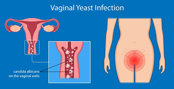 Yeast Infection Vaginal Diagnosis Causes Symptoms Treatment