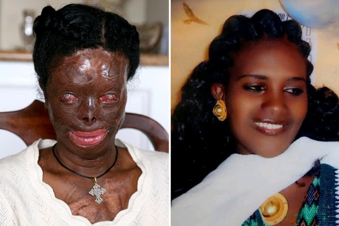 Mom ,29,gets life-changing surgery to reconstruct her face after husband's acid attack