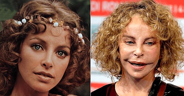Когда-то она была самой красивой актрисой Италии, пока не подсела на пластику и не изуродовала себя
