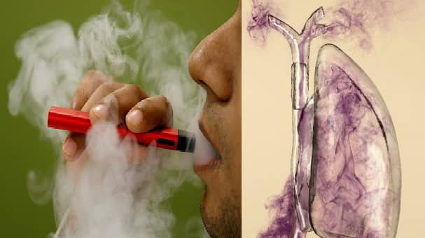traitement pour cancer du poumon