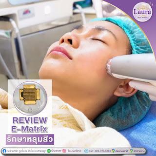 lauraclinic บริการรักษาหลุมสิวด้วยเลเซอร์ E-matrix เป็น ชื่อเครื่อง เลเซอร์รักษาหลุมสิว ที่เป็นที่นิยมที่สุดอันดับ 1 ของเมืองไทย