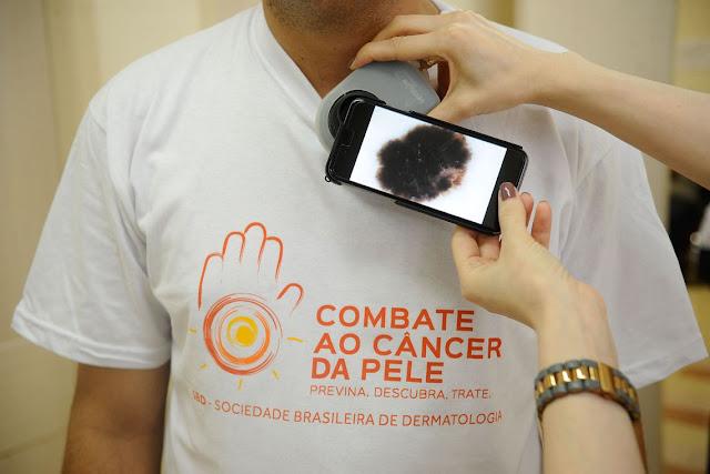 Mutirão fará diagnóstico precoce de câncer de pele em todo o país