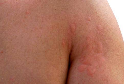 Hives Kise Kahte Hai, Lakshan, Causes (उर्टिकेरिया पित्ती)