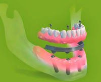 implant dentar staruman pro arch pareri forum parodontoza