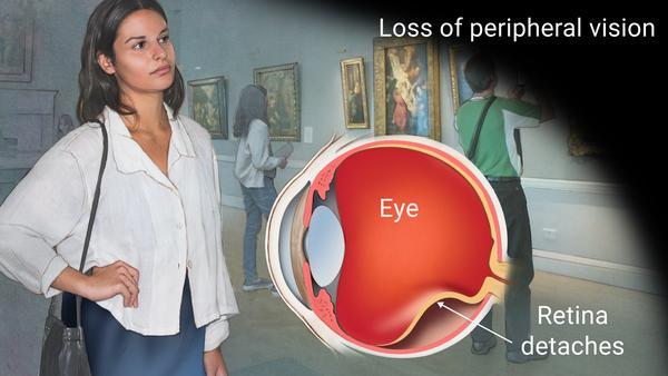 Penyakit Ablasi Retina ( Ablasio Retina )