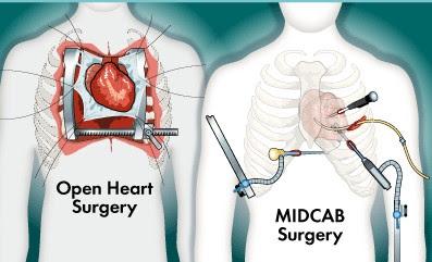 minimally-invasive-heart-surgery