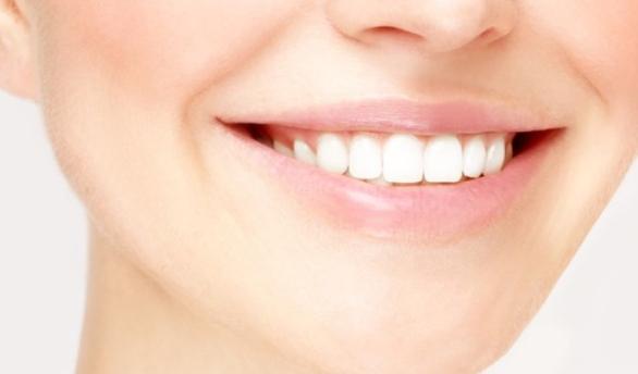 Inilah Cara Kembalikan Warna Putih Alami Gigi