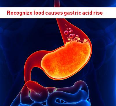 Gasric acid, lambung, asam lambung