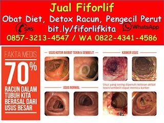 0822-4341-4586 (WA), Obat Alami Diabetes Kering