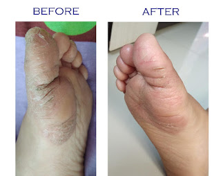 cracked dry skin on toes